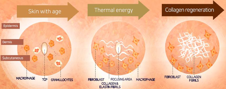 Nguyên tắc tái tạo collagen